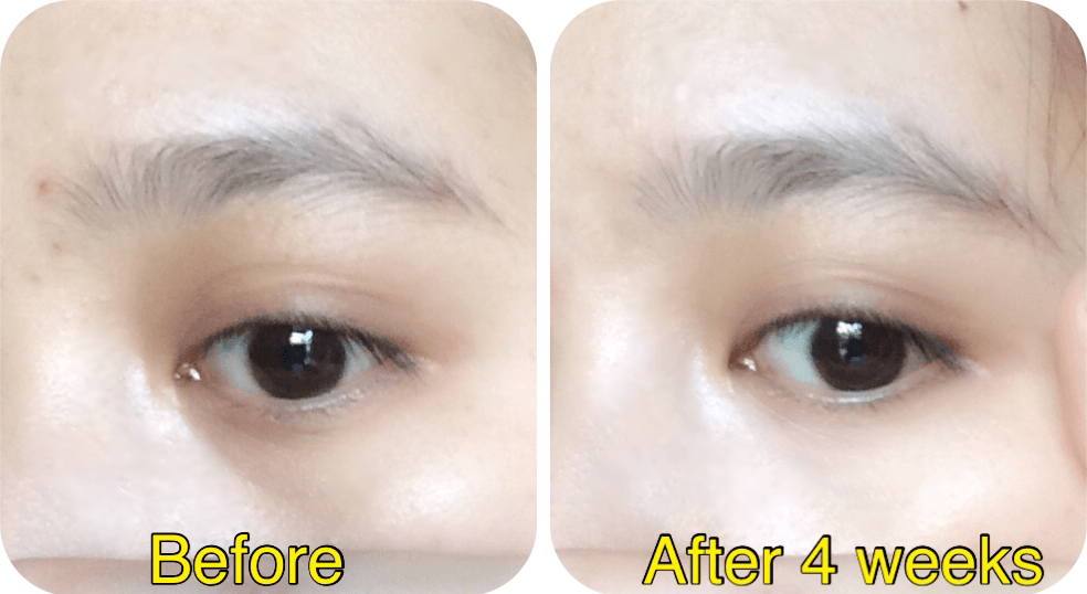 kem-duong-mat-simple-kind-to-eyes-soothing-eye-balm-1014